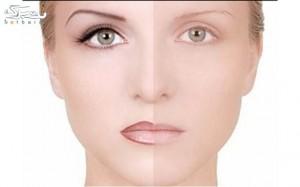 آرایش دائم میکروپیگمنتیشن