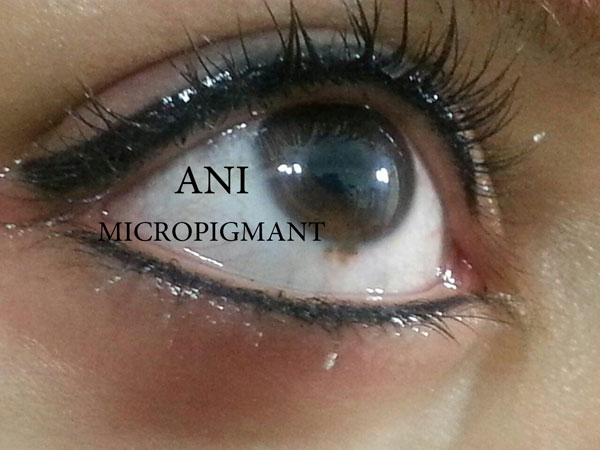 میکروپیگمنتیشن بن مژه