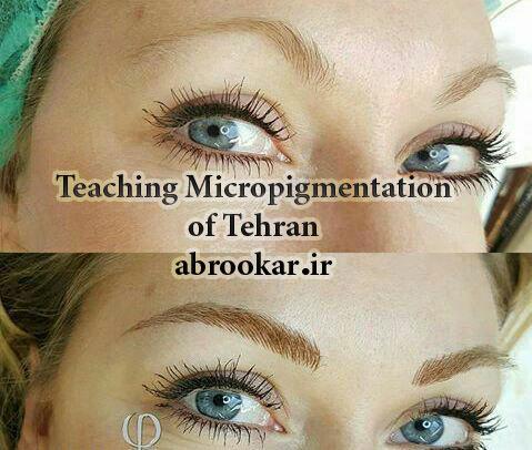 آموزش میکروپیگمنتیشن تهران