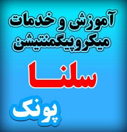 میکروپیگمنتیشن و میکروبلیدینگ در غرب تهران