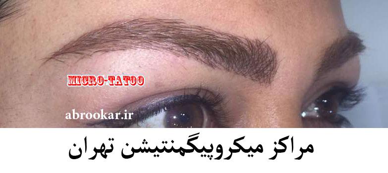 میکروپیگمنتیشن چشم در شمال تهران