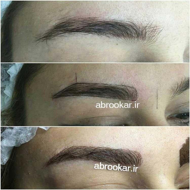 نکات مهم در آرایش دائم با میکروپیگمنتیشن