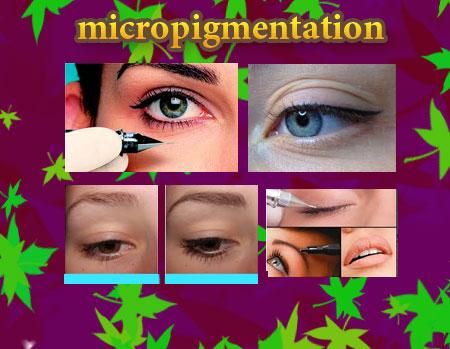 میکروپیگمنتیشن چشم